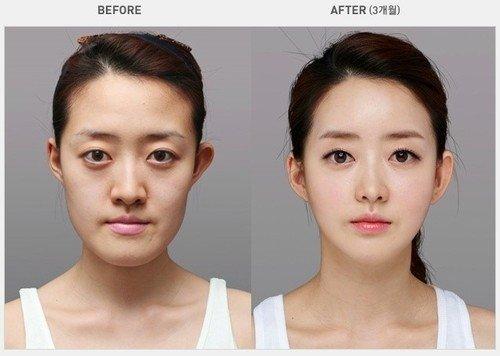 تصاویری از قبل و بعد از عمل جراحی پلاستیک