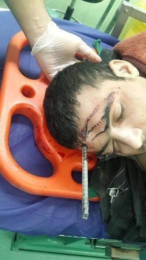 انجام جراحی نادر برای خروج میلگرد یک متری از سر یک کارگر در تهران