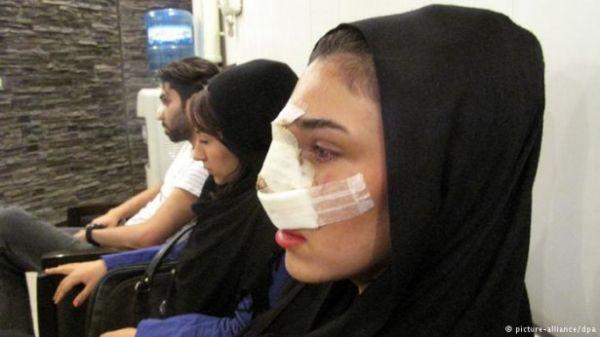 هزینه جراحی بینی شیراز