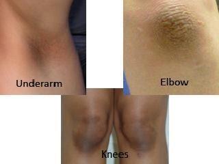 راه حل تیرگی پوست زیربغل و آرنج و زانو